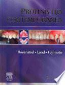 libro Prótesis Fija Contemporánea